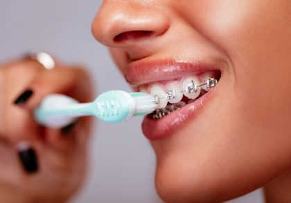 علت اصلی و علامت مهم پوسیدگی دندان