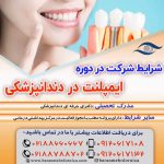دوره ایمپلنت در دندانپزشکی