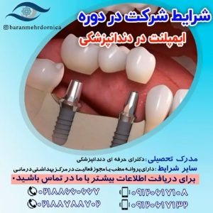 کاربرد ایمپلنت در دندانپزشکی