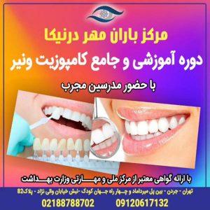 کاربرد کامپوزیت در دندانپزشکی