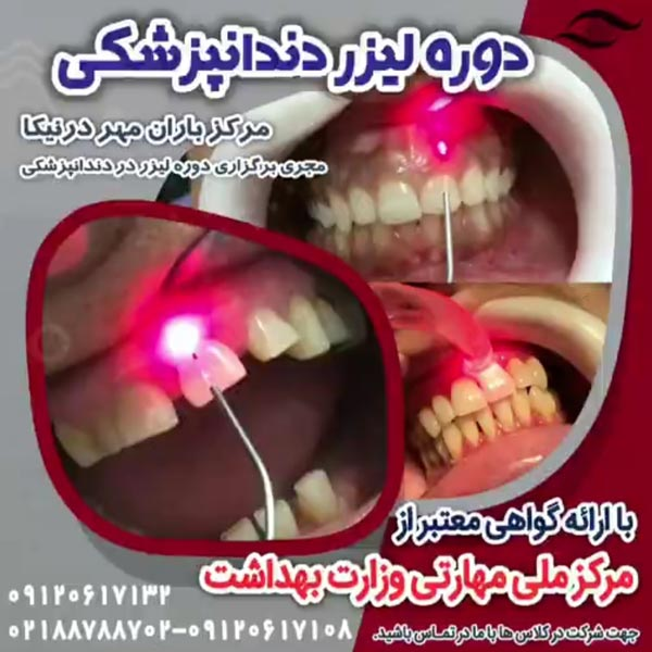 دوره لیزر در دندانپزشکی در تهران